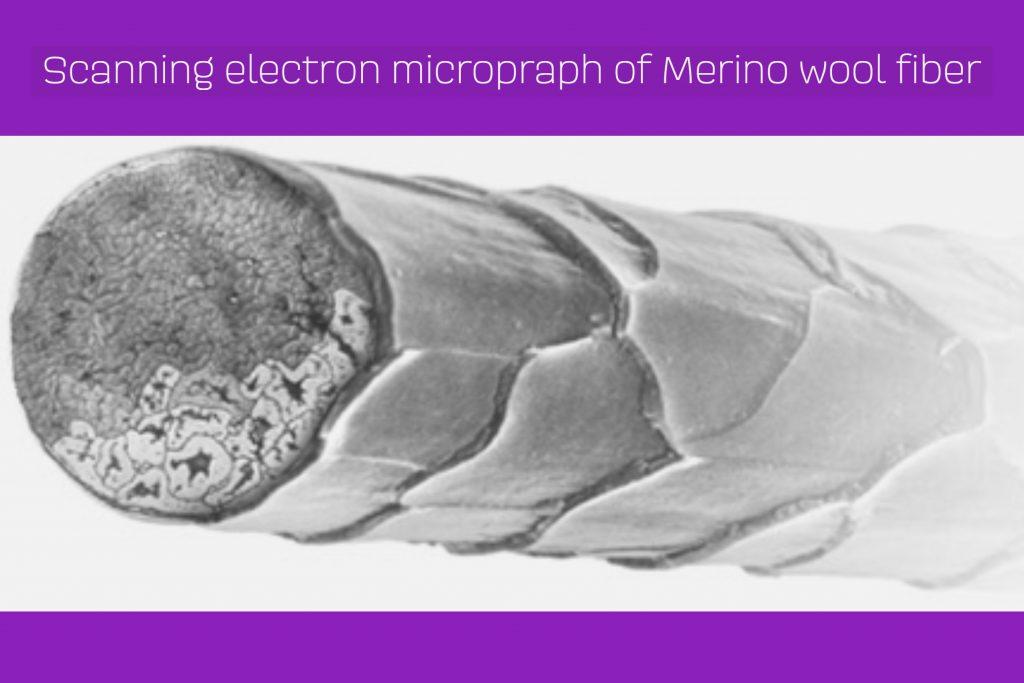 merino electron micrograph 2